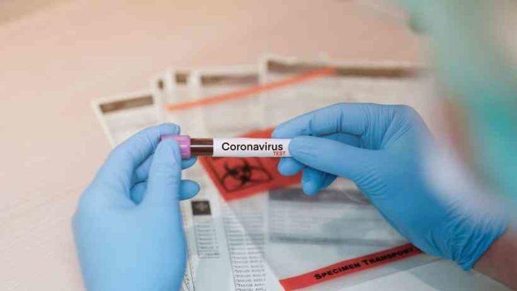 Sesap confirma total de 6 mortes pelo novo coronavírus no RN; infectados são 215 e casos suspeitos 2.261