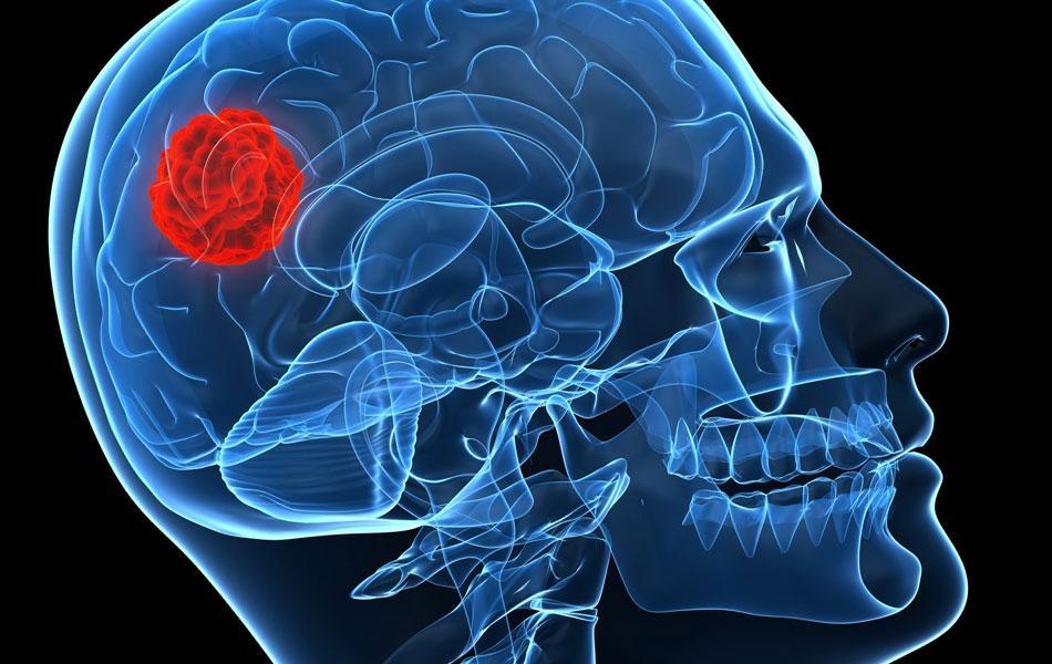 Casa Durval Paiva alerta sobre tumores do sistema nervoso central